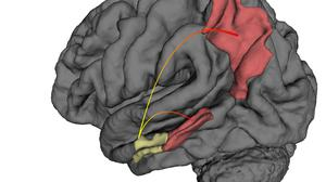 Gout appears to have a protective effect on the brain, researchers have said.