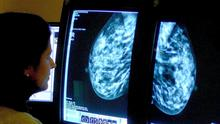 It has been estimated that one million women missed mammogram appointments during the pandemic (PA)