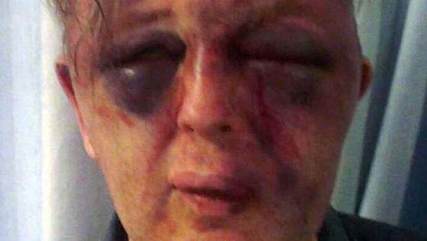 Paul Kohler needed facial reconstruction surgery after the attack