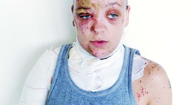 Acid attack victim Tara suffered injuries to her face and upper body (Metropolitan Police/PA)