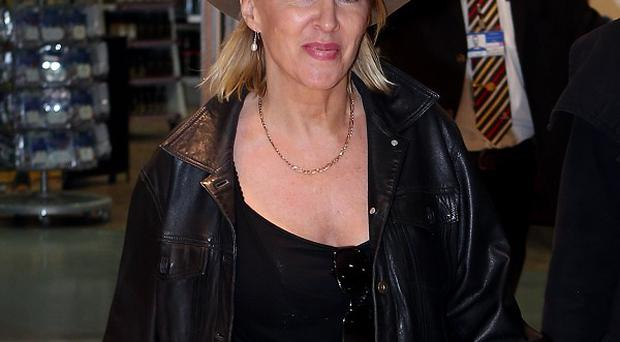 Nadine Dorries has spoken of her distress after discovering she is losing her hair