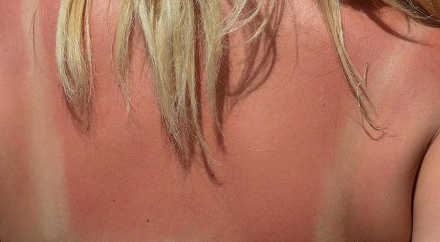 Excessive exposure to UV rays from the sun or sunbeds is one of the key risk factors for melanoma