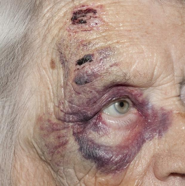 A 95-year-old woman was attacked after confronting burglars inside her home (Essex Police/PA)