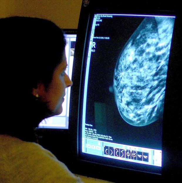 More than 180,000 women could die from breast cancer by 2030, a new report warns