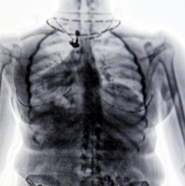 Belfast Health Trust urged to rethink changes to X-ray services