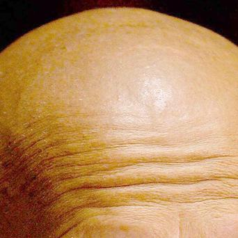 A new study has raised hopes of a new treatment for hair loss.