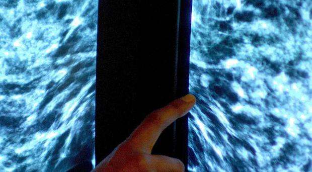 Ethnic background may be a factor influencing a woman's chance of surviving breast cancer, a study says