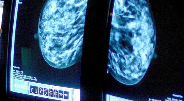 A test could be available in two years that identifies seven distinct types of breast cancer