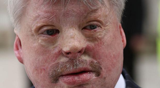 Simon Weston has called for a more realistic portrayal of injured service personnel