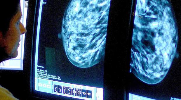 A consultant analysing a mammogram.