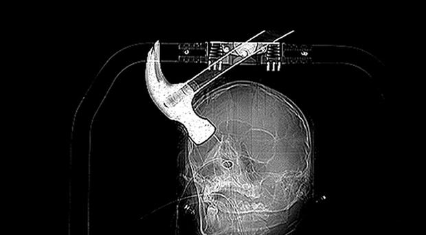 X-ray of Connor Huntley who was attacked with a claw hammer by his house mate Joseph Williams, 21, as he slept