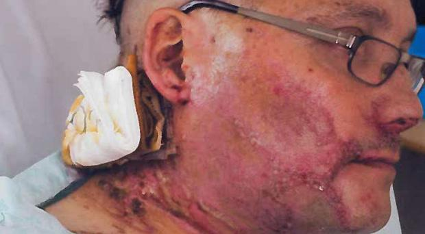 Wayne Ingold was attacked with a corrosive liquid in Bramble Road, Witham (Essex Police/PA)