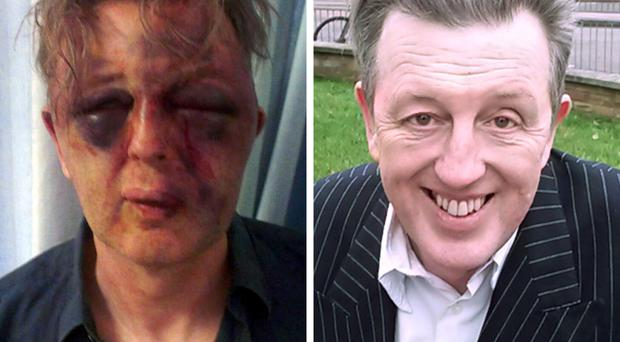 Paul Kohler after and before the attack by robbers in his home