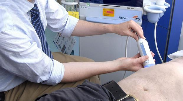 A FibroScan uses sound waves to assess the degree of tissue damage