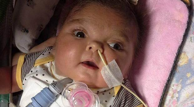 Olivia Stanca, who has died in her parents' arms after her life support was withdrawn following a long court battle over her treatment.