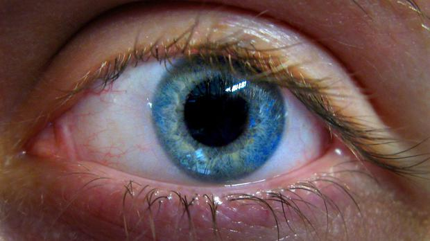 A row has broken out over the provision of a drug to treat an eye condition