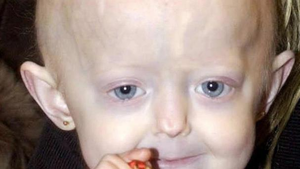Hayley Okines, pictured in 2002, suffered from progeria