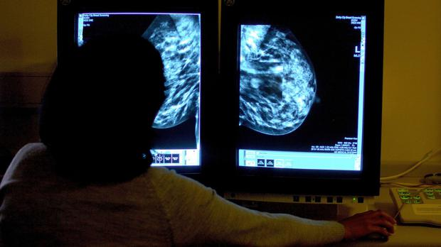 Family history does not play a part in the outcome of breast cancer victims