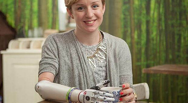 Nicky Ashwell, 29, has been fitted with a bionic hand