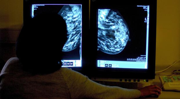 The target time for treating breast cancer patients was not met, NHS England said