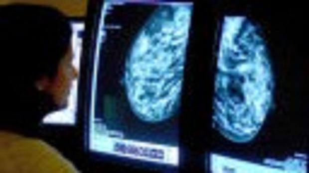 A test could help to identify breast cancers most likely to return after treatment