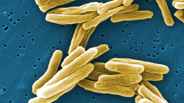 Parts of London have higher rates of tuberculosis than countries such as Rwanda, Eritrea and Iraq, according to a report