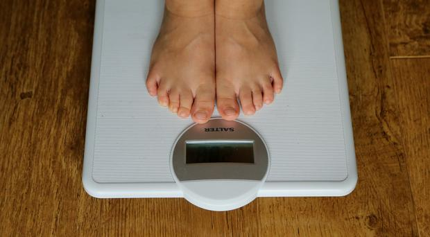 Research suggests weight-loss surgery produces