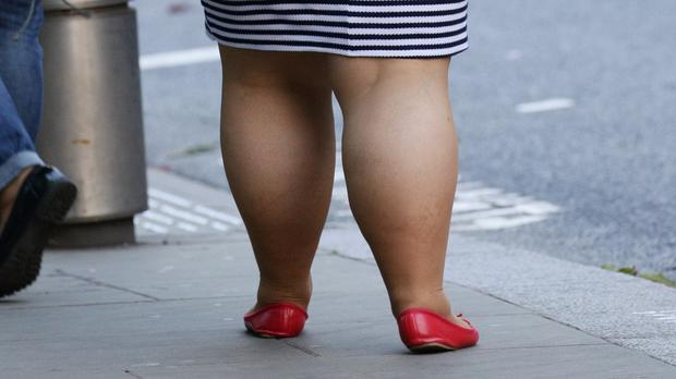 Type 2 diabetes is linked to unhealthy lifestyles, including obesity