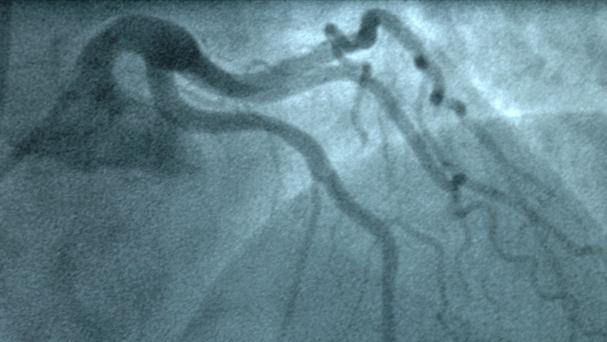 Surgical monitor showing a main heart artery during an angiogram procedure.