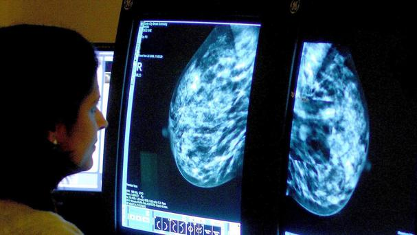 Experts have warned that greater life expectancy means more people are getting cancer