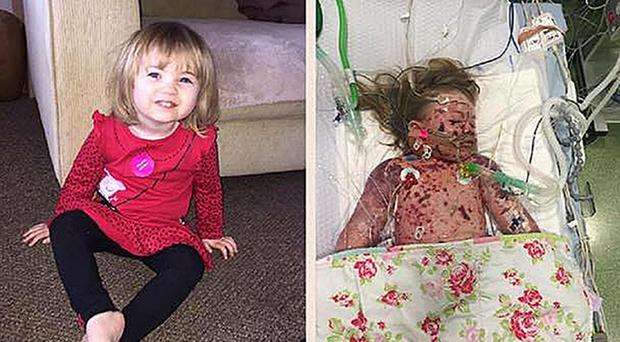 Faye Burdett before and after she contracted meningitis (Meningitis Now/PA)