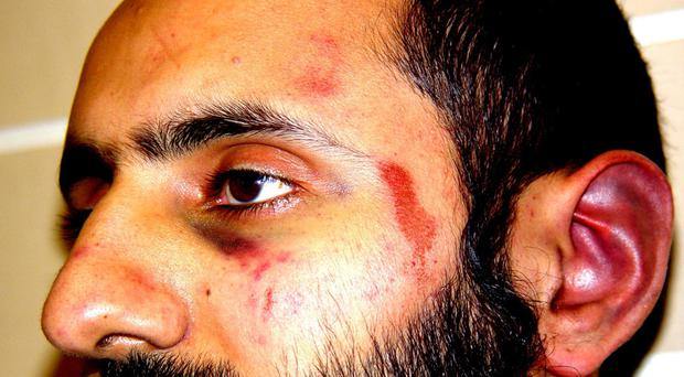 Babar Ahmad was paid £60,000 in damages by Scotland Yard for injuries he sustained when he was first arrested