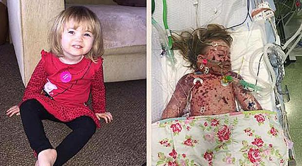 Faye Burdett before, left, and after she contracted meningitis (Meningitis Now/PA Wire)