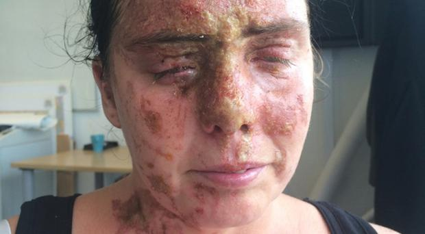 Carla Whitlock was the victim of an acid attack (Hampshire Police/PA)