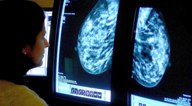 The use of breast cancer drug Perjeta on the NHS has been rejected