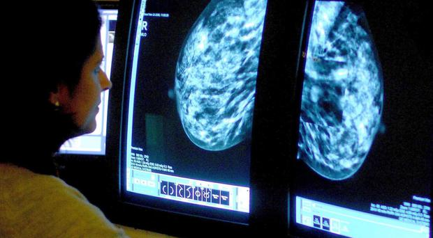 Around 12,000 women a year see their ER-positive breast cancer return
