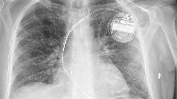 Patients with pacemakers have been warned that electronic security systems in shops could interfere with the devices (Coventry University Hospital /PA)