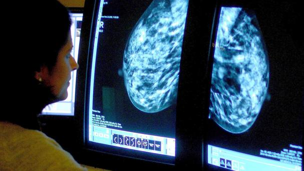 The EndoPredict test can more accurately predict whether a woman's cancer will spread around the body than the standard test used on the NHS