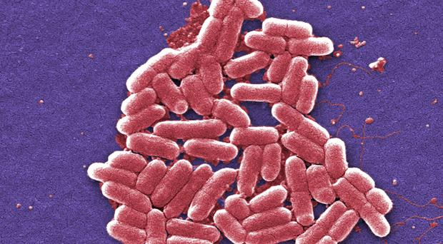 Experts are trying to trace the source of the E. coli outbreak, which has infected more than 150 people