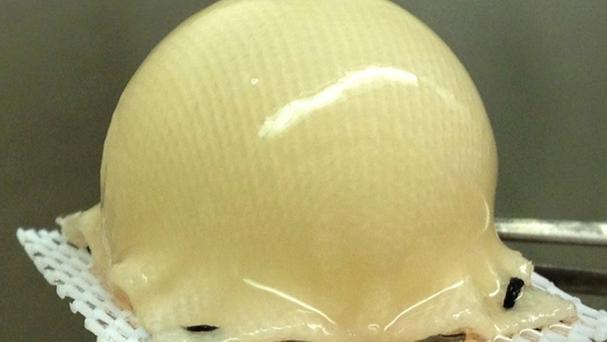 Cartilage grown from stem cells, which has been used to cover a biodegradable synthetic scaffold shaped like the ball of a hip joint(Guilak laboratory/PA)