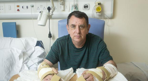 The UK's first double hand transplant patient Chris King, from Doncaster, with his new hands