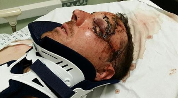 The unnamed assault victim in hospital (Devon and Cornwall Police/PA)