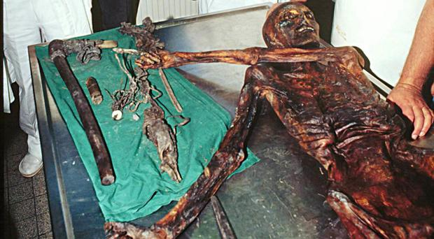 Otzi's body has been studied extensively after being discovered encased in glacier ice in 1991 (AP)