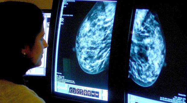 HRT brings a threefold increase in the risk of developing breast cancer, a new study shows