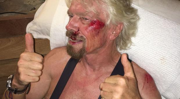 Sir Richard Branson after he was involved in a bicycle crash (Virgin.com/PA)