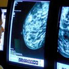 Experienced radiologists can spot subtle signs of breast cancer in mammogram images in just half a second, a study has found. File image