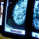 A consultant analysing a mammogram, as research found that 2.5% of patients with breast cancer who had chemotherapy died within 30 days