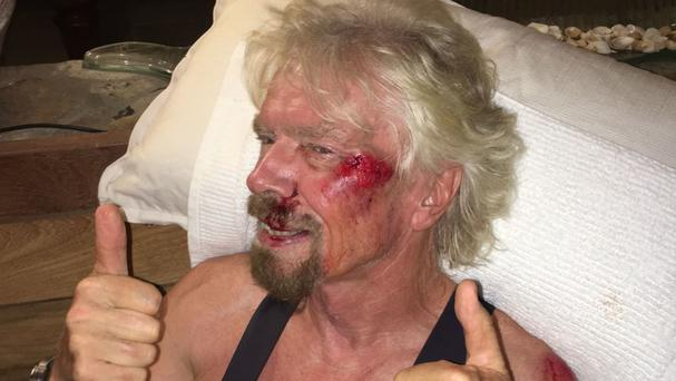 Sir Richard Branson after the bike accident (Virgin.com/PA Wire)