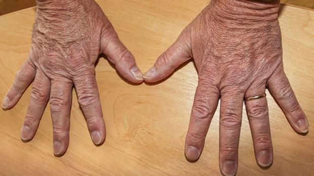 Ukip MEP Mike Hookem issued a photo of his hands, which he says display no bruises, cuts, or grazes