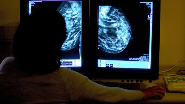 Breast Cancer Now welcomed the move, saying that the drug would offer a 'crucial' alternative to patients